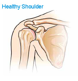 Understanding Reverse Shoulder Replacement
