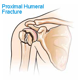 Proximal Humeral Fracture